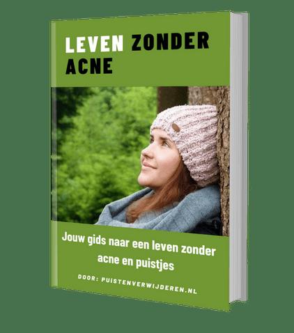e-boek over puisten en acne