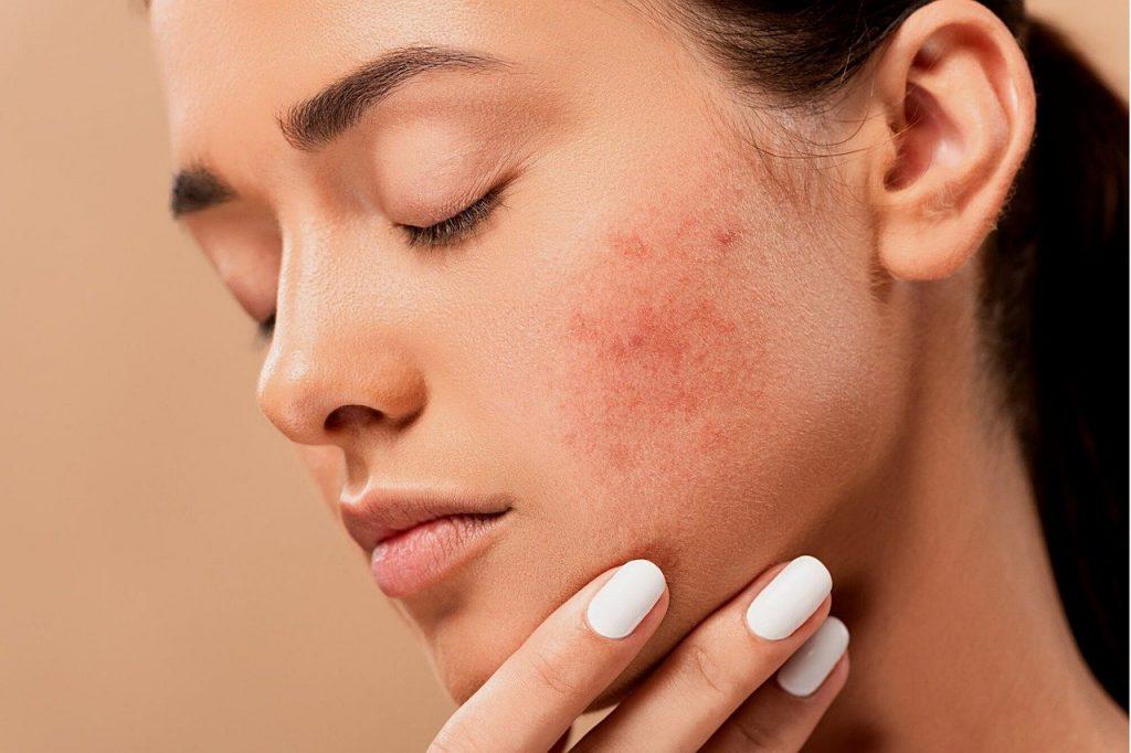 acne en puisten